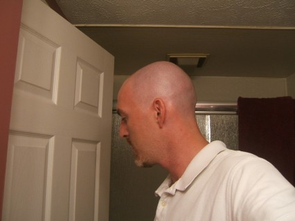 Shaved Head - After - Side View