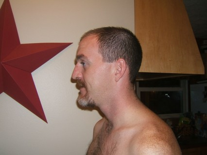 Shaved Head - Before - Side View