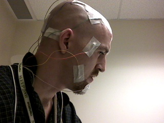 All Connected For My Sleep Study (Side View)